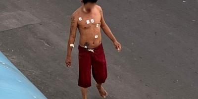 Morador de rua, que estava internado com Covid-19, foge de hospital e pega mototáxi no interior do Amazonas
