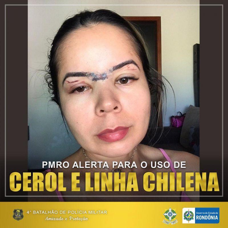Polícia Militar alerta sobre o uso de cerol e linha chilena, em Cacoal