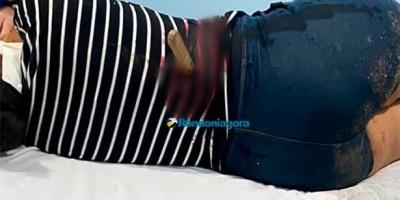 Homem crava faca nas costas de ex-mulher em RO